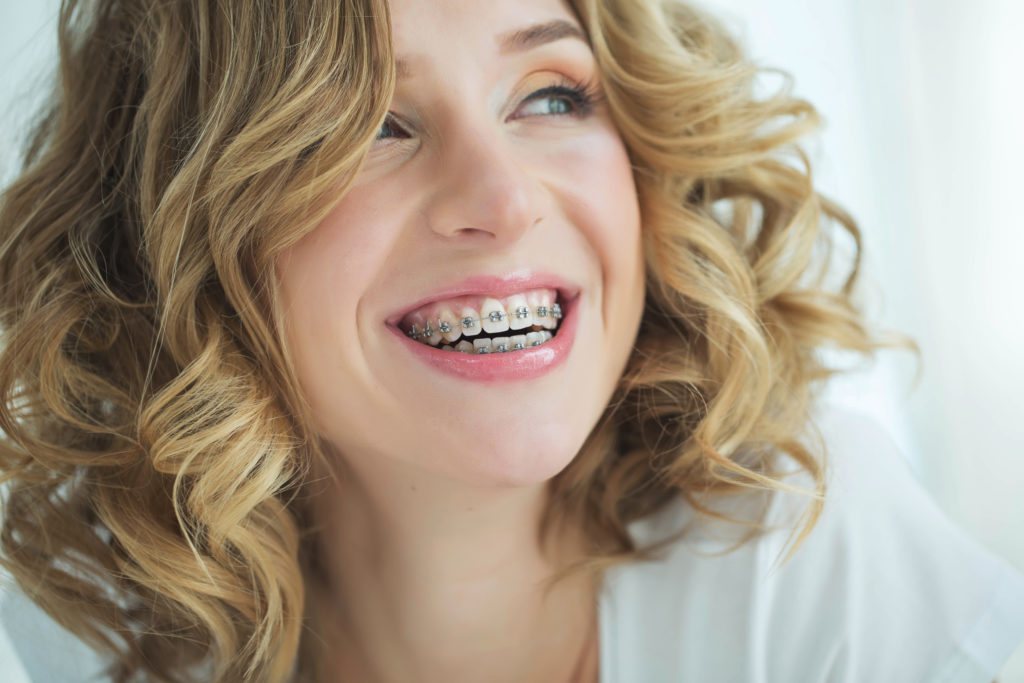 Smiling woman in metal braces