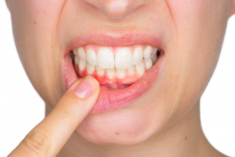 person pointing to red inflamed gums